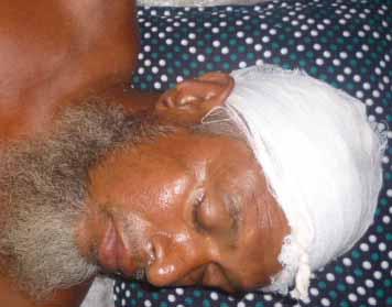 শ্যামনগরের ধুমঘাট পল্লীতে প্রতিপক্ষের হামলায় পাঁচজন আহত